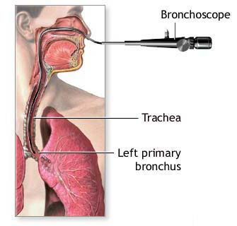 Bronchoscopy Surgery India, Price Bronchoscopy Surgery Delhi India, Cost Bronchoscopy Surgery, Bronchoscopy, Bronchoscopy Anatomy, Bronchoscopy Biopsy, Bronchoscopy Surgery Delhi India, Bronchoscopy Surgery Bangalore India