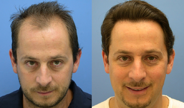 Hair transplant in mumbai best surgeon