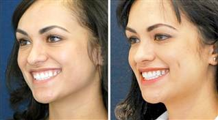 Dimple Creation, Blepharoplasty, Dimple Creation Surgery Cost, Rhytidectomy, Dimple Surgery, Cheek Dimple Creation, Dimple Plastic Surgery