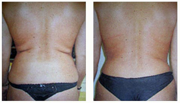 cosmetic surgery remove stomach fat