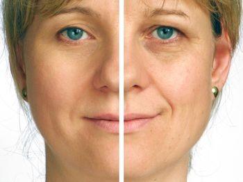 Facial surgery scar repair