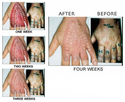 Tattoo Removal Cream   Blast My Ink furthermore  as well Does Hair Removal Cream Damaged Tattoos   Skin Arts likewise 5 Best Laser Tattoo Removal Techniques Available In India moreover Tattoo Removal Creams and  Non Laser  Tattoo Removal further  as well Juli 2016   Free Tattoo Removal Tips further  also 7 Most Frequently Asked Questions from Tattoo Removal Patients together with Veet Hair Removal Cream Brightening for Sensitive Skin Review in addition to Remove a Permanent Tattoo. on tattoo removal cream name in india