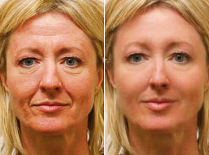 Cosmetic Eye Surgery in India, Cost Cosmetic Eye Surgery Mumbai India, Cost Cosmetic Eye Surgery, Cosmetic Surgery Center, Ocular Oncology, Cosmetic Eyelids, Ptosis Corrective Surgery, Cosmetic Eye Treatment Mumbai Bangalore Delhi India, Cosmetic Eye Surgery Hospitals, Cosmetic Eye Treatment Hospitals