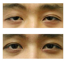 Cosmetic Eye Surgery India, Cost Cosmetic Eye Surgery Mumbai India, Cost Cosmetic Eye Surgery, Cosmetic Surgery Center, Cosmetic Eyelid Surgery, Cataract And Refractive Surgery, Ocular Oncology, Cosmetic Eyelids, Ptosis Corrective Surgery, Corrective Plastic Surgery
