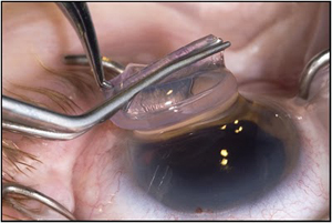 DSEK Descemets Stripping Endothelial Keratoplasty Cost Delhi India, Descemets Stripping Endothelial Keratoplasty Surgery, Dsek Surgery, Descemets Stripping Endothelial Keratoplasty Surgery