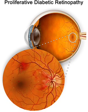 DIABETIC RETINOPATHY SURGERY IN INDIA