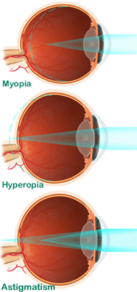 Myopia Surgery India,Cost Myopia Surgery Delhi India,Myopia Eye Surgery, Cost Myopia Surgery, Myopia, Nearsightedness, Laser Vision Treatment, High Myopia Treatment, High Myopia Surgery India
