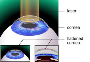 Photorefractive Keratectomy Surgery India, Cost Keratectomy Bangalore, Prk Laser Eye Surgery, Laser Vision Correction Refractive LASIK, PRK Laser Surgery Procedure, Laser Vision Correcton Surgeries, Laser Eye Surgery, Photorefractive Keratectomy Surgery Hospitals