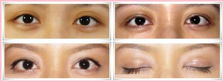 Ptosis Correction Surgery India, Price Ptosis Correction Surgery Delhi, Blepharoplasty, Ptosis Surgery, Blepharoptosis, Acquired Ptosis, Aponeurotic Ptosis, Myogenic Ptosis