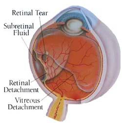 Retinal Detachment Surgery India, Price Retinal Detachment Mumbai India, Laser Eye Surgery, Laser Vision Treatment, Retinal Detachment Surgery India, Cost Retinal Detachment
