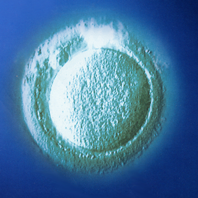Egg Freezing in India, Cost Egg Freezing Mumbai India, Egg Freezing Clinic, Egg Freeze Delhi, Egg Freezing Services, Female Egg Freezing, Freezing Eggs, Egg Freezing Facts, Extend Fertility, Pregnancy & Fertility Forum Pregnancy & Fertility Tips