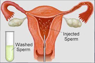 Cost of donar sperm insemination