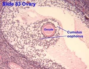 Direct oocyte sperm transfer