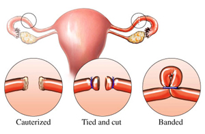 Tubal Ligation Reversal Surgery India, Price Tubal Reversal Mumbai, Reproductive Health, Tubal Ligation Reversal Pregnancy, Tubal Ligation Reversal Surgery Bangalore India, After Tubal Ligation, IVF, Tubal Reanastomosis