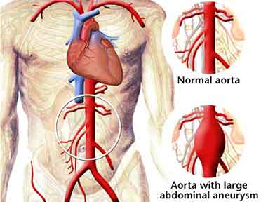 Aortic Aneurysm Surgery in India, Price Aortic Aneurysm Surgery Mumbai, Cost Aortic Aneurysm, Aortic Aneurysm Surgery Delhi India, Best Aortic Aneurysm Surgery Hospital India, India Aortic Aneurysm Surgery Hospital India