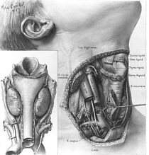 Thyroidectomy Surgery India, Cost Thyroidectomy Surgery, Thyroidectomy Surgery Bangalore India, Thyroidectomy Surgery Price