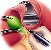 Open Cholecystectomy Surgery India, Open Cholecystectomy Surgery Delhi India, Open Cholecystectomy Surgery Bangalore India