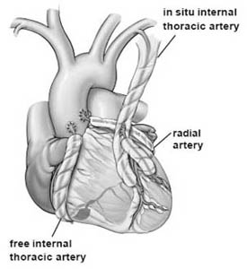 Coronary Artery Bypass Graft Surgery India, Cost Heart Cabg Delhi India, Cost Cabg Surgrey Delhi India, Cost Coronary Artery Bypass, Coronary Artery Bypass Surgery, Coronary Artery, Bypass Surgery