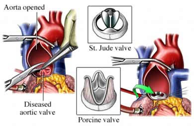 Heart valve replacement surgery in Chennia   Heart valve ...