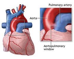 Pulmonary Endarterectomy Surgery, Price Endarterectomy Surgery Delhi, Carotid Artery Disease, Cerebrovascular Disease, Narrowing Of The Carotid Artery, Preventing Strokes, Carotid Blockage