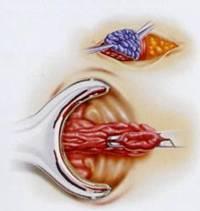 Hemorrhoidectomy Surgery India, Price Minimally Invasive Hemorrhoidectomy, Hemorrhoidectomy Surgery Cost India, Hemorrhoidectomy Cost India