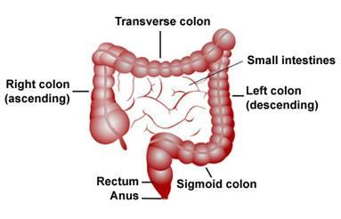 Sigmoid Colectomy Surgery India, Price Sigmoid Colectomy Surgery Delhi India, Sigmoid Colectomy Surgery Cost India, Sigmoid Colectomy, Sigmoid Colectomy Cost India