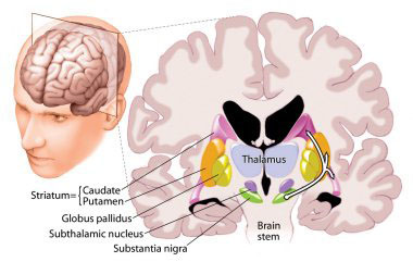 Thalamotomy Surgery India,Cost Thalamotomy Surgery Bangalore India, Cost Thalamotomy Surgery, Diseases And Conditions, Brain And Nerves, Thalamic Stimulation, Surgical Treatment Of Parkinson's Disease, Pallidal Stimulation, Thalamotomy Price
