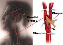 Carotid Endarterectomy Surgery India, Cost Carotid Endarterectomy Delhi