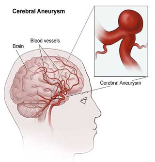 Cerebral Aneurysm Surgery India, Cost Cerebral Aneurysm Surgery Delhi, Cerebral Aneurysm, Brain Aneurysm, Aneurysms, Cerebral Aneurysm Treatments , Disorder, Cerabal Aneurysm
