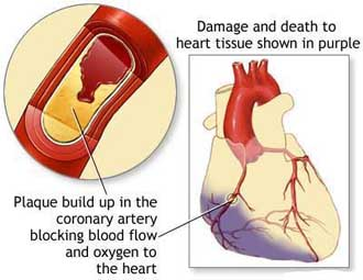 Cerebral Angioplasty Surgery India, Cerebral Angioplasty, Balloon Angioplasty, Brain SPECT, PCTA, Percutaneous Transluminal Coronary Angioplasty, Coronary Artery Disease, Stent, Cerebral Angioplasty Surgery Hospital India