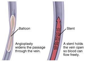 Venous Angioplasty Surgery Symptoms India, Venous Angioplasty Surgery Doctors Bangalore India, Venous Angioplasty Surgery Related Symptoms India, Venous Angioplasty Surgery Kolkata India, Signs India, Signs And Symptoms India, Venous Angioplasty Surgery Medical Symptoms India, Angioplasty Surgery India, Causes Of Venous Angioplasty India, Low Cost Venous Angioplasty Surgery India