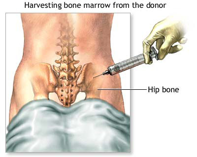 Bone Marrow Transplant India, Cost Bone Marrow Transplant Chennai India, Cost Bone Transplant, Bone Marrow Transplant Cost, Bone Marrow Transplant Pain