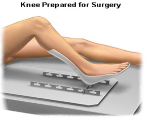 Bilateral Knee Replacement Surgery India, Knee Replacement, TKR, Total Knee Replacement Surgery, Total Knee Replacement, Injured Knee, Surgery To Replace Knee, About Knee Replacement, Patient