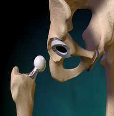 Cost Hip Replacement Surgery Chennai India, Hip Replacement India, Hip Replacement Cost, Hip Replacement Surgery Abroad, Hip Replacement India