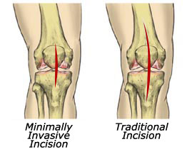 Minimally Invasive Knee Replacement Surgery India, Cost Knee Replacement, Knee Replacement, Minimally Invasive Knee Replacement, During, After, Procedure, Surgery, Recovery Time, Shorter