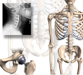 SPINE SURGERY AND ORTHOPEDIC SURGERY in India