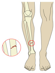 Orthopedic Knee Surgery in India