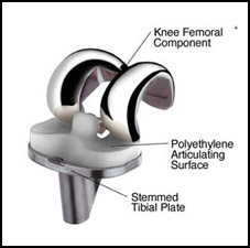 Partial Knee Replacement Surgery India, Cost Partial Knee Replacement, Partial Knee Replacement Surgery Cost, Partial Knee Replacement Surgery India, Cost Partial Knee Replacement Surgery
