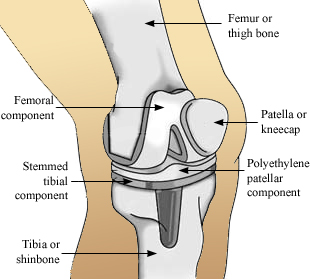 Revision Knee Replacement Surgery India,Price Revision Knee Replacement, Revision Knee Replacement Surgery Procedure, Revision Knee Replacement Surgery Recovery