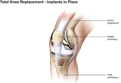 Total Knee Replacement Surgery India, rthritis, Arthritis Treatment, Knee Surgery, Total Knee Replacement Surgery Cost, TKA, Total Knee Replacement, Knee Replacement, Knee Replacement Surgery,