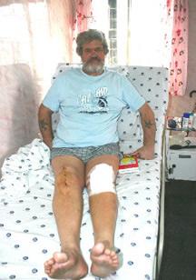 Unicondylar Knee Replacement Surgery Delhi India, Price Unicondylar Knee, Artificial Knee, Knee Implant, Unicondylar, Uni Knee, Arthoplasty, Arthroscopic Surgery, Unicondylar Knee Replacement Treatment Cost, Unicondylar Knee Replacement Doctors