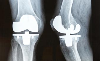 Unilateral Knee Replacement Surgery India Cost Ukp