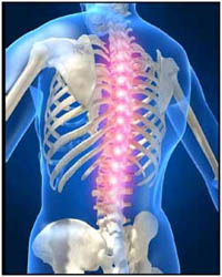 Cost of Spine Surgery in India