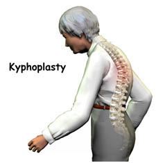 Kyphoplasty Surgery India, Kyphoplasty Spine Surgery India, Kyphoplasty Problem, Kyphoplasty Vertebroplasty, Scoliosis