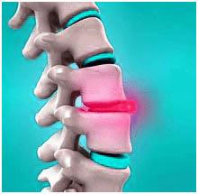 Nucleoplasty Surgery India, Cost Nucleoplasty Surgery Delhi India, Nucleoplasty Surgery Doctor India, Nucleoplasty, Nucleoplasty, Percutaneous Nucleoplasty Surgery, Nucleoplasty Spine Surgery