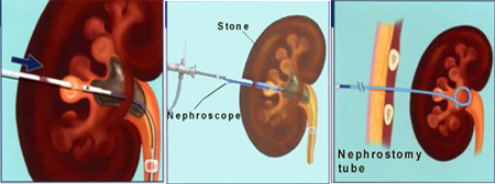 PCNL Surgery india, PCNL Care In India, Cost Percutaneous Nephrolithotomy Surgery India,
