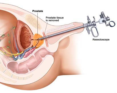 Transurethral Resection Of The Bladder Tumor Surgery India, Price TURBT, Turbo-Bladder Tumor India, Low Cost Turbo-Bladder Tumor Mumbai India, TURBT-Transurethral Resection Of The Bladder Tumor Surgery Hospital Mumbai India