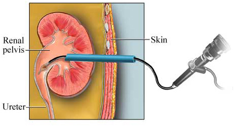 Percutaneous Nephrolithotomy Surgery India, Cost Nephrolithotomy Delhi, Percutaneous Nephrolithotomy Mumbai-Delhi India, Low Cost Percutaneous Nephrolithotomy Mumbai India, Percutaneous Nephrolithotomy Surgery Hospital Mumbai India