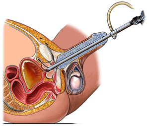 Transurethral Resection Of Prostate Surgery India, Cost Turp Mumbai india, Cost TURP-Transurethral Resection Of Prostate Surgery India, Transurethral Resection Of Prostate Surgery Delhi India