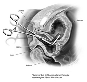 vesicovaginal fistula surgery in india